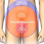 Pelvic Floor – Getting to the Bottom of Your Problem
